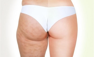 5-home-antycellulite-remedies